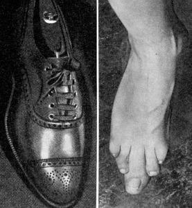 Fot&sko mindre
